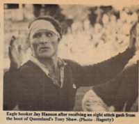 Jay Hanson all taped up after getting stomped on the head against Queensland. Photo Ed Hagerty Rugby Magazine.